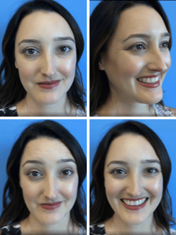 BEFORE: Botox injections at CosmetiCare, Newport Beach | A Good Hue