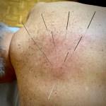 agopuntura dolori spalla