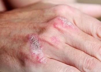 A psoríase é uma doença crônica, autoimune que atinge cerca de 125 milhões de pessoas. Foto: Divulgação