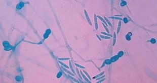 Fusarium solani