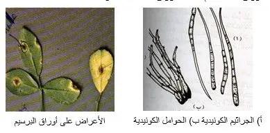 شكل رقم (1): الأعراض على أوراق البرسيم والجراثيم الكونيدية والحوامل الكونيدية للفطر سركسبورا
