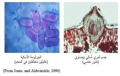 شكل رقم (1): الجسم الثمري الأسكي والجراثيم الأسكية