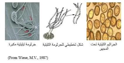 شكل رقم (1): الجراثيم التيليتية (تحت المجهر)