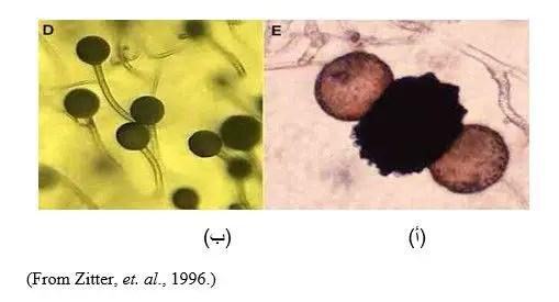 شكل رقم (4): أ) الجرثومة الزيجوية   ب) الأكياس الأسبورانجية