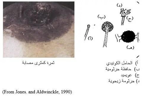 شكل رقم (1) أعراض الإصابة بعفن ميوكر على ثمرة كمثرى و شكل الفطر تحت المجهر