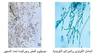 شكل رقم (1): الفطر Cladosporium spp تحت المجهر (40 ×)
