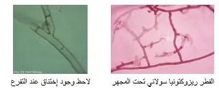 شكل (1) شكل الفطر تحت المجهر