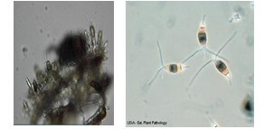 شكل رقم (1) شكل الفطر تحت المجهر