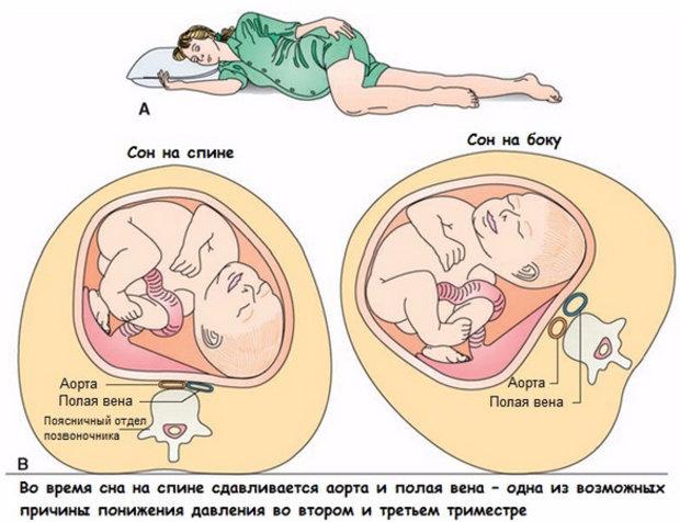 Точка зрения, как правильно спать во время беременности это