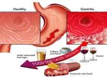 Maag, Penyebab dan Pencegahan Kekambuhan