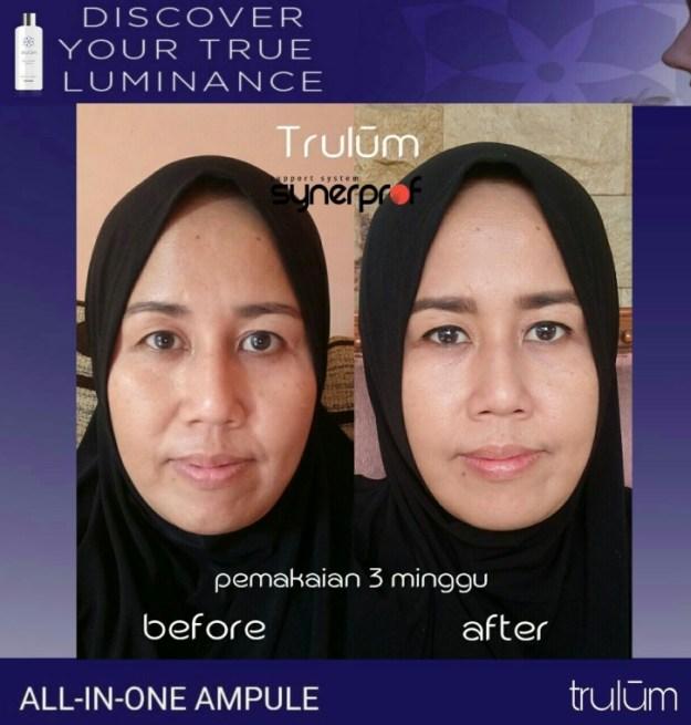 Jual Trulum Skincare di Matesih Hub wa 0838 0505 5353