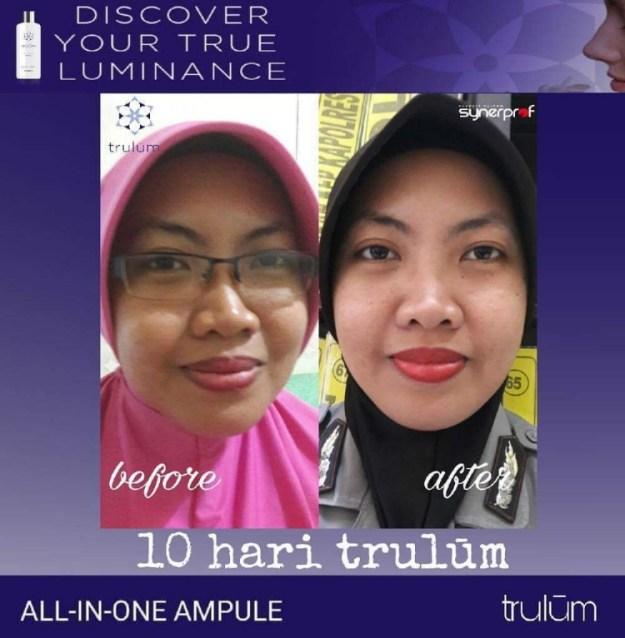 Jual Trulum Synergy Skincare di Klaten Juwiring WA 0838 0505 5353 Terpercaya