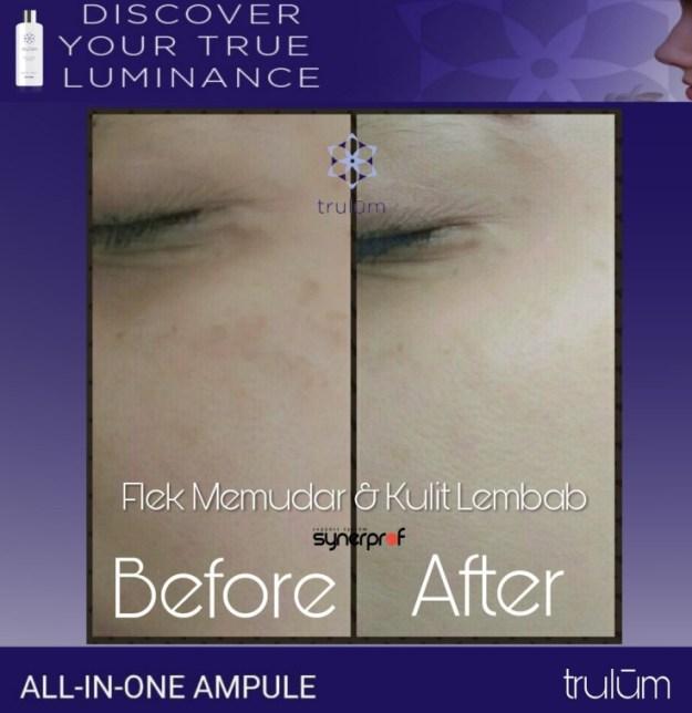 Jual Trulum Skincare di Jabodetabek Hub wa 0838 0505 5353