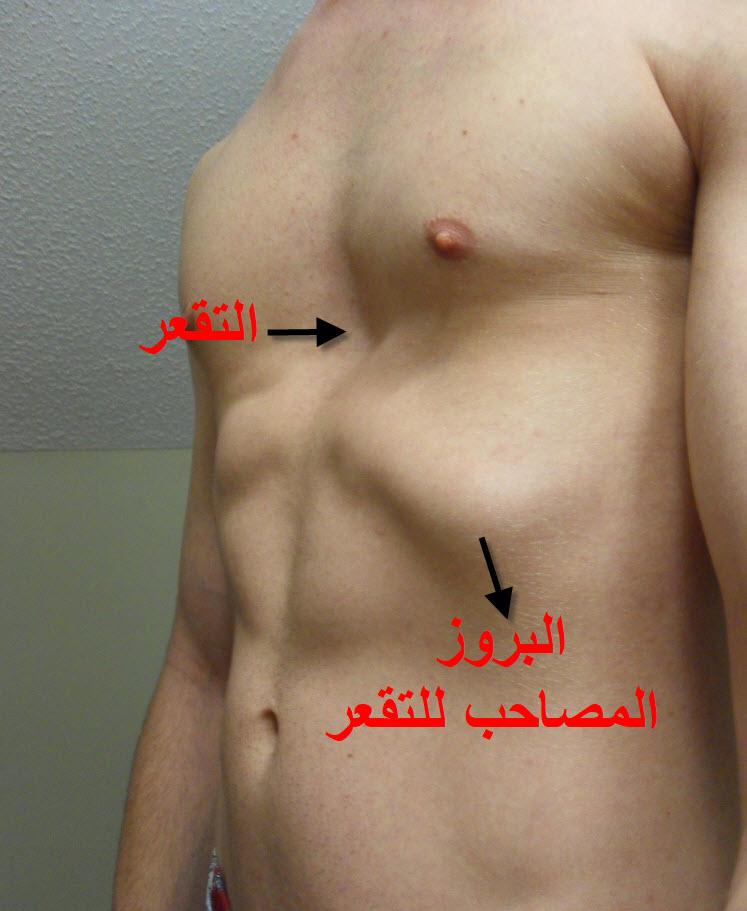 علاج التقعر الصدري