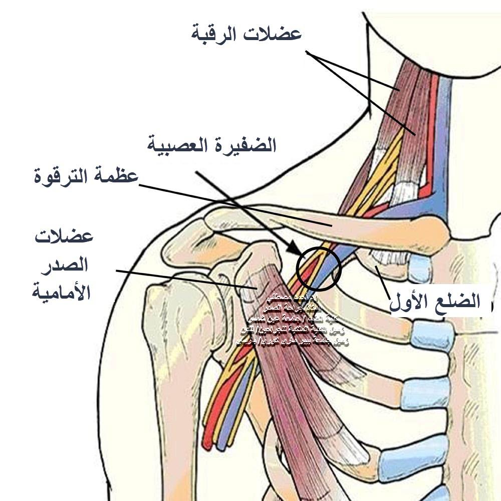متلازمة مخرج الصدر