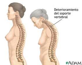 SALUD: El 40% de las mujeres mayores de 50 años sufre algún tipo de fractura