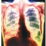 TUBERCULOSIS: Otra enfermedad de la pobreza (Parte II – Final)