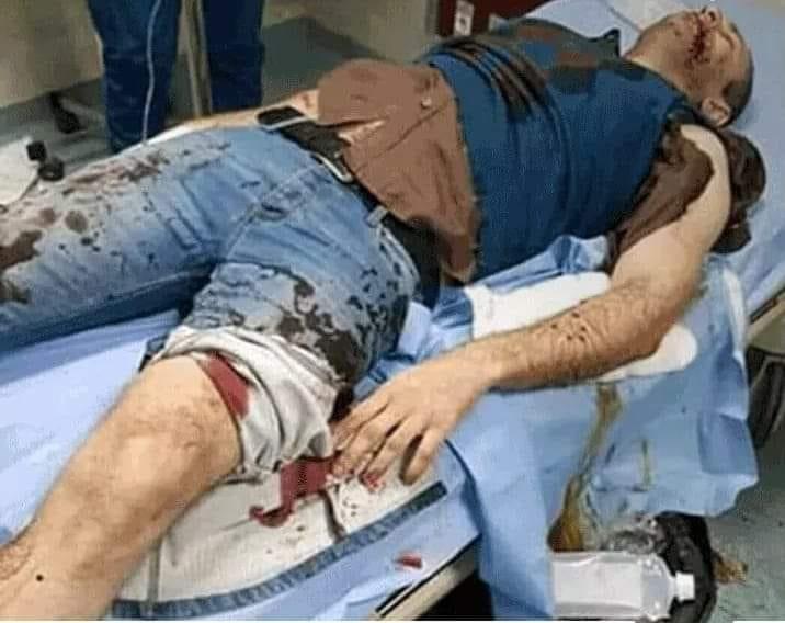 كلبان شرسان يصيبان ضابطا بجروح بالغة في التجمع الأول