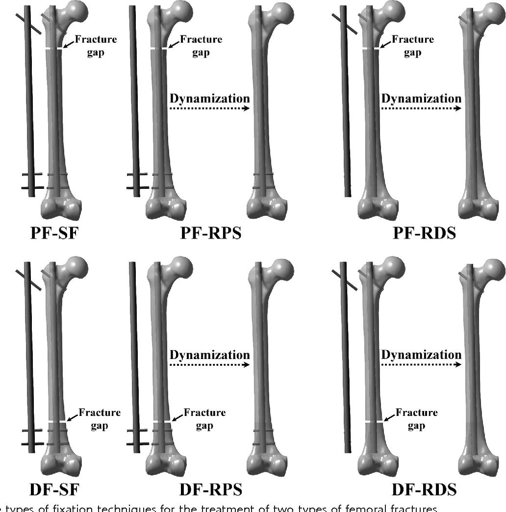 Dynamization Of Tibial Nail