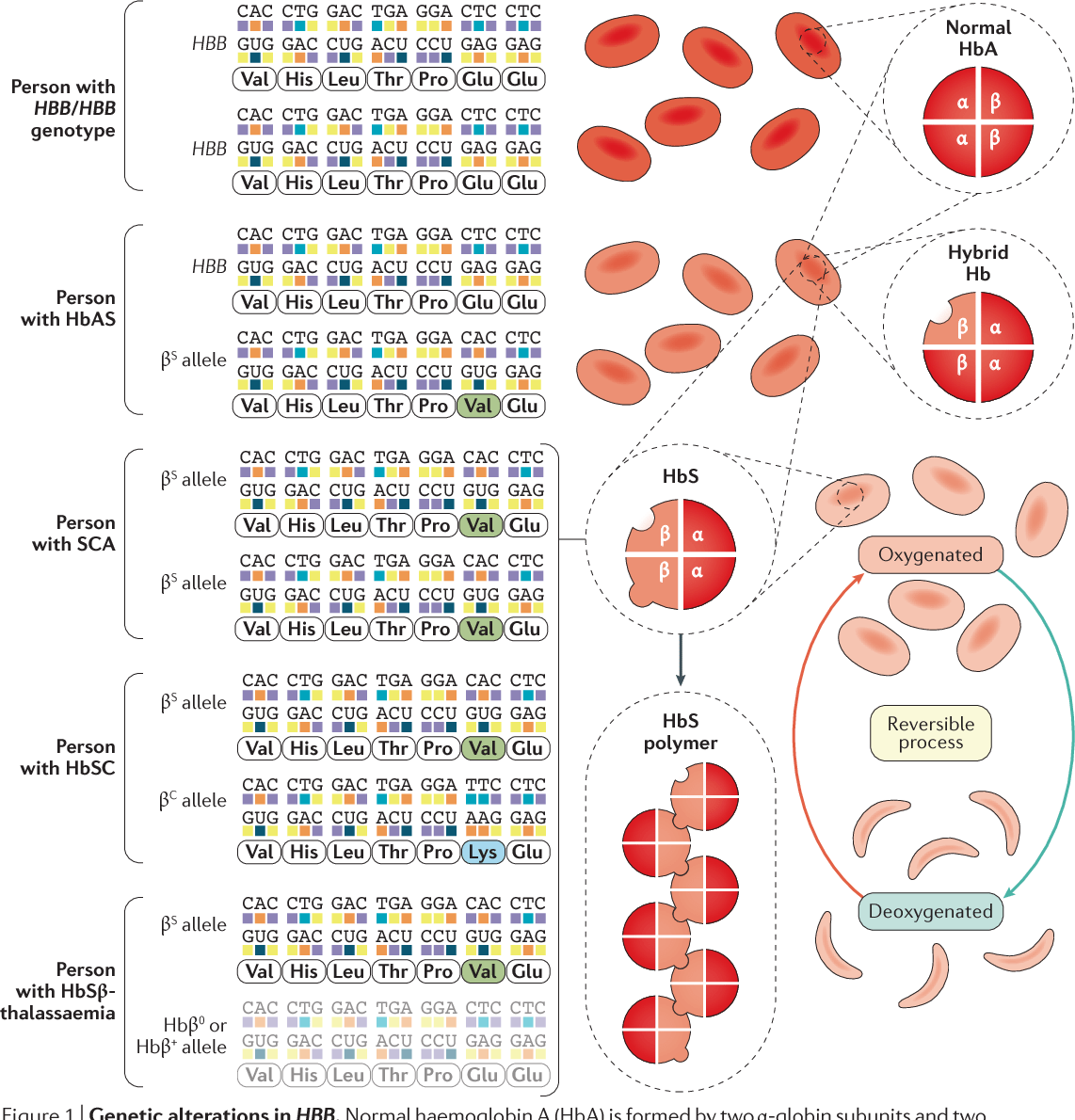 Figure 1 From Sickle Cell Disease