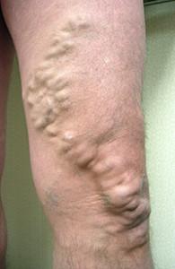 varicose veins large
