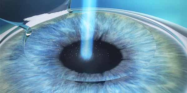 myopia-laser