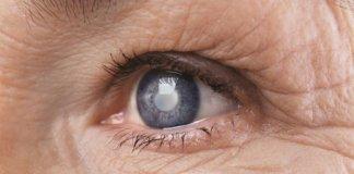 mati-glafkoma-eyes