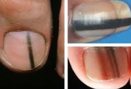 爪で分かる病気や健康状態(爪11種)
