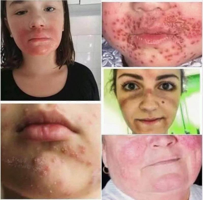 mask rash