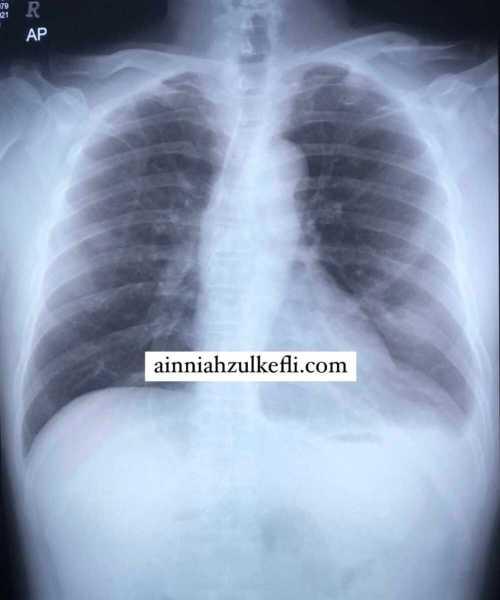 kanser paru paru tahap 4