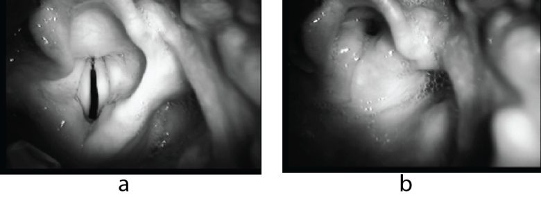 Photo comparing a relaxed larynx with open vocal cords to a photo of laryngospasm in the same larynx.