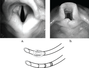 Photo of adult vs an infant larynx with an Illustration of a cuffed vs an uncured endotracheal tube to demonstrate why difference sin anatomy allow use of an uncured tube in infants
