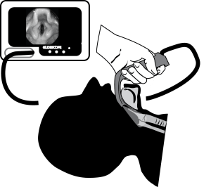 illustration of a glidescope intubation in cords section, with the view of the larynx behind in a monitor