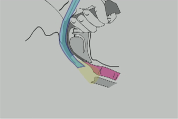 Illustration showing how pulling ETT tip back during glidescope intubation can improve the view of the larynx