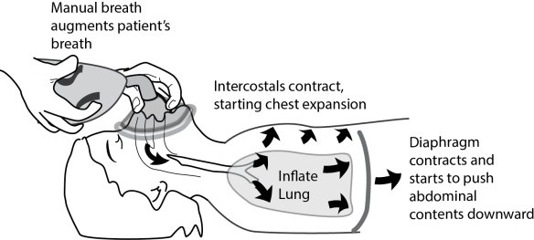 Illustration showing the components of how to assist ventilation that need to coordinate with the mechanics of the patient's own spontaneous breathing