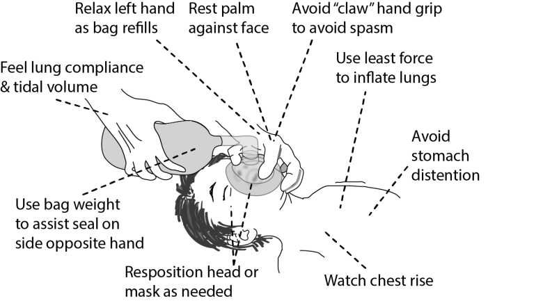 Illustration showing Helpful tips for avoiding hand fatigue while effectively ventilating