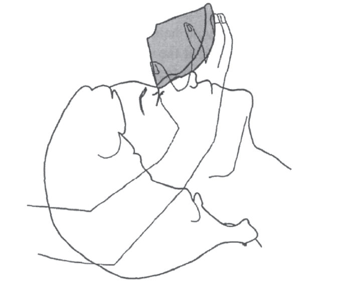 Illustration of applying the top of the mask to the bridge of the nose to obtain a good mask seal while make ventilating a patient