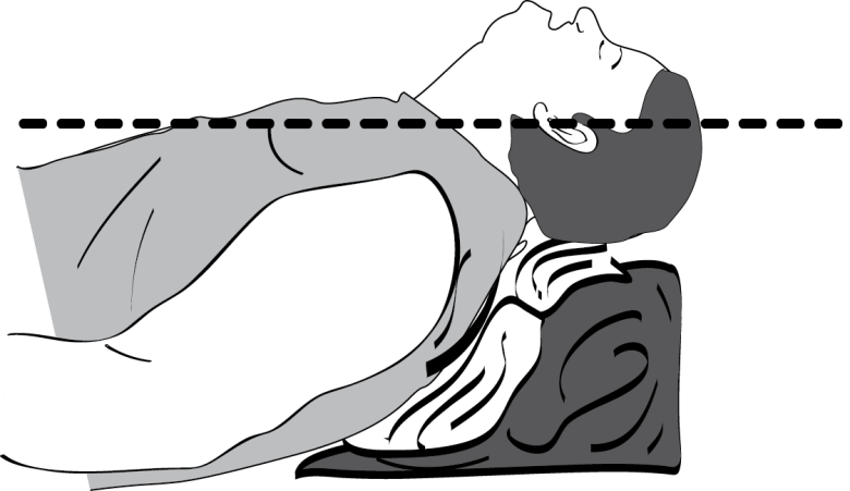 Illustration showing how a linen ramp can be used to optimally position a morbidly obese patient into the sniffing position for intubation. (from Anyone Can Intubate 5th Ed.)