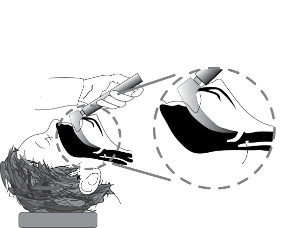 Illustration showing how a MAC can fold the epiglottis downward during intubation of an infant or small child.