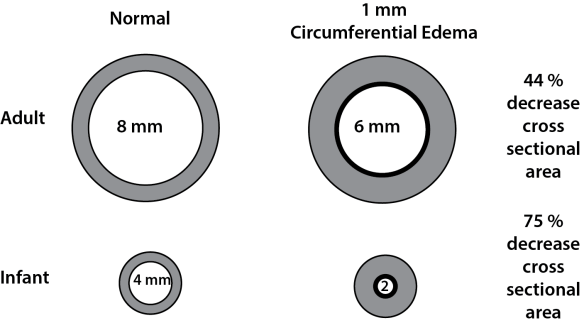 Illustration showing the effect of edema on airway diameter between an infant and an adult