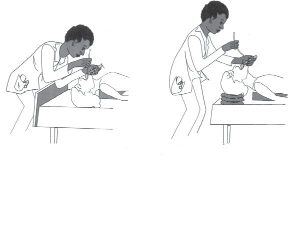 Illustrations showing how more optimal positioning can assist intubation. Compares good and poor positioning