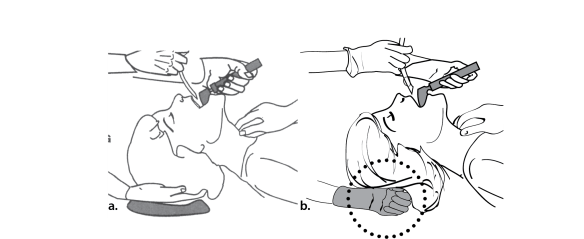 Illustration showing how an assistant can help lift the head during laryngoscopy without moving the head