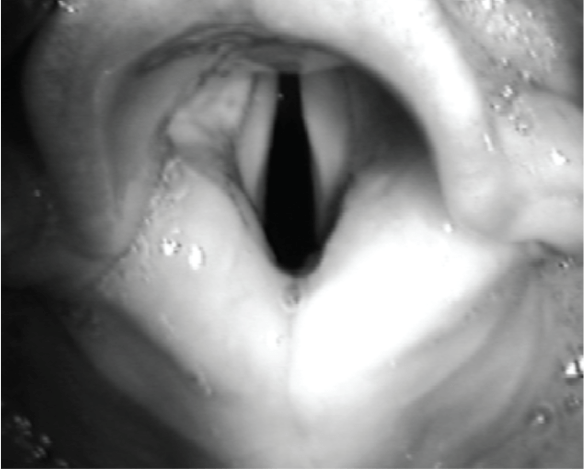 Photo closeup of the larynx viewed during direct laryngoscopy with a curved blade in black and white