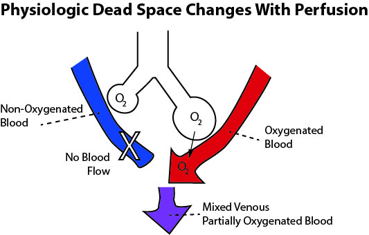 This illustration defines the concept of physiologic dead space