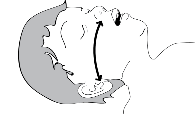 Illustration showing how to Measure the distance from nares to tragus to predict correct nasal airway size. When substituting a cut endotracheal tube, use this length to estimate the length to cut the tube before insertion.