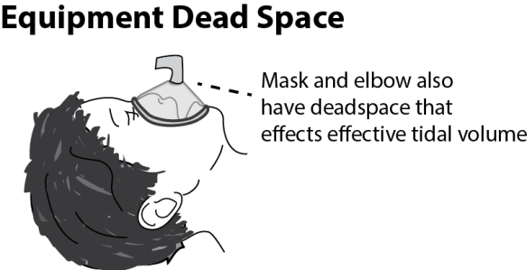 Illustration of a child's head with a mask attached to an airway elbow demonstrating the concept of equipment dead space
