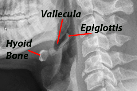 detail of lateral neck XRay showing laryngeal anatomy