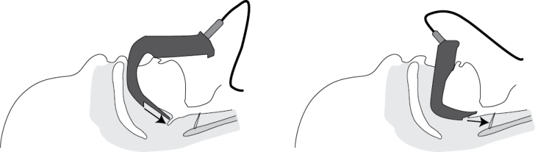 Illustration showing how the difference in shape of the various sizes of pediatric Glidescope Blades can effect visualization of the cords.