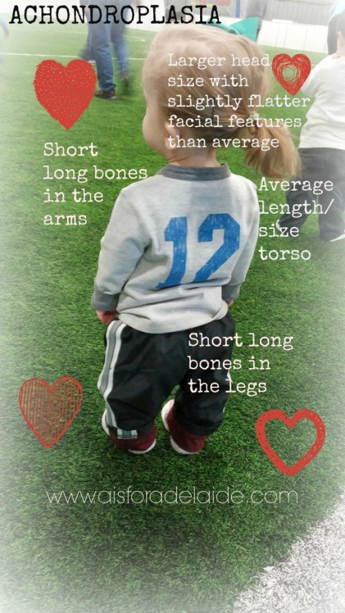 #aisforadelaide #soccer #teamworks #sizemeanslittletome #achondroplasia #dwarfism
