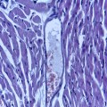 myocardial-ischemia-and-reperfusion